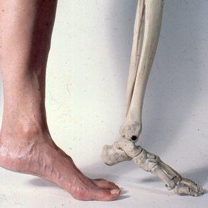 Vintage Medical Slide Photo Viewer Keychain foot